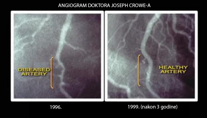 Holesterol uzrokuje opasne kardiovaskularne probleme. Ishrana ključni faktor u borbi sa holesterolom. Biljna hrana bez holesterola.