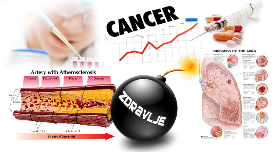 Bomba otkucava - loše životne navike - Lečenje raka, infarkt, loša ishrana.