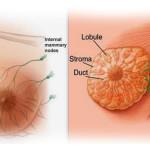 Rak dojke kao hormonski zavisni tumor