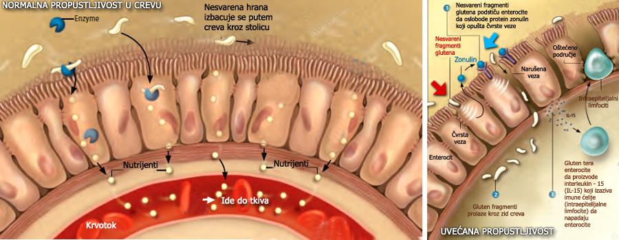 Gluten je lepak za autoimune bolesti. Gluten pomaže tumorske bolesti. Autoimune bolesti kojima smo izloženi mogu biti posledica povećanog unosa glutena.