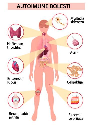 Autoimune bolesti - imuni sistem - Većina savremenih bolesti su autoimunog tipa i posledica zabune imunog sistema. Imuni sistem nas leči i ubija.