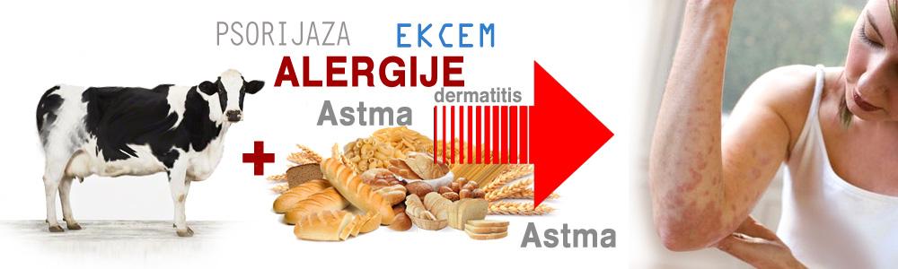 Alergije kao posledica zatrovanosti organizma - Hrana izaziva alergije. Alergije predstavljaju veliki zdravstveni problem. Hrana puna alergena.