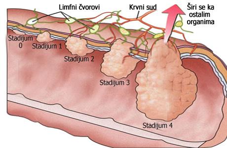 Rak debelog creva (rak kolorektuma) predstavlja jedan od najčešćših oblika raka na ovim prostorima pored raka dojke i uglavnom su posledica loše ishrane.