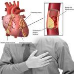 Ateroskleroza kao bolest životnog stila