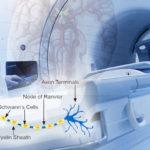 Neurološke bolesti - Neurološke smetnje